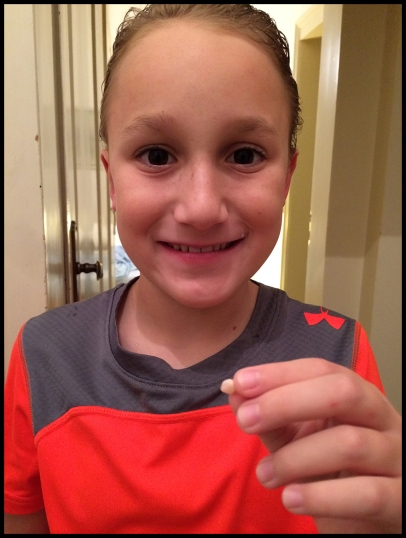 Lost another tooth!